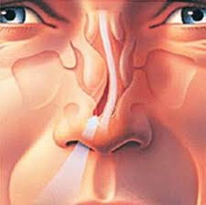 nasal-desviado